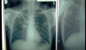 Conduite-a-tenir-par-le-medecin-du-travail-face-a-une-tuberculose-pulmonaire